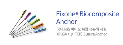 FixoneⓇ Biocomposite Anchor